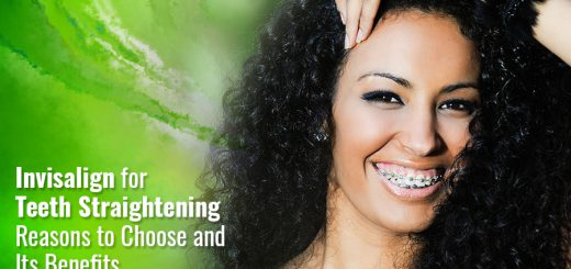 Invisalign for Teeth Straightening: Reasons to Choose and Its Benefits
